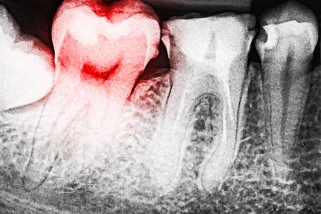 Scary Dental Xray