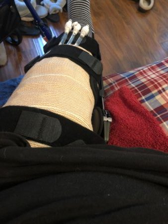 ACL Post-Op 2 hours